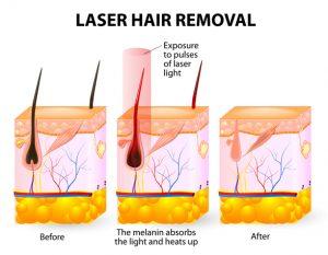 Describing laser hair removal procedure